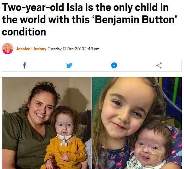 """英2岁女童患罕见""""本杰明·巴顿病""""面容衰老"""