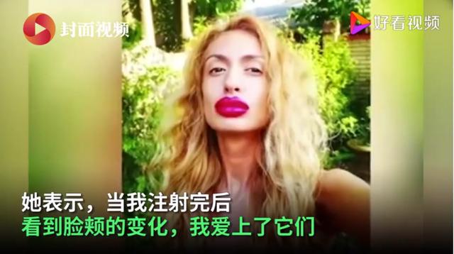 网红模特自称拥有世界最大脸颊 先后已花费2000美元